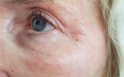 Fibroblasting – Skin Tightening for Wrinkles