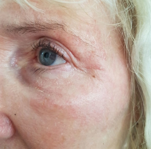 Crows feet after fibroblasting procedure